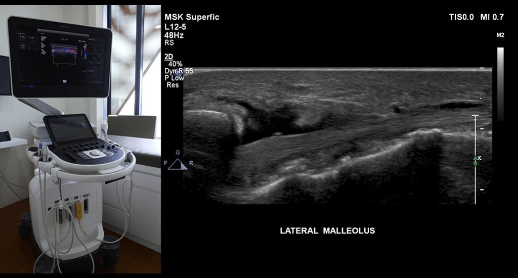 Bjios Ultrasound