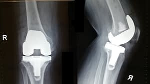 Understanding Knee Replacement Surgery