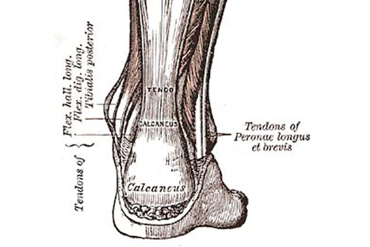 Recognizing Achilles Tendinitis: The Essentials